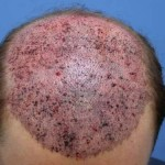 The top of my head showing the incisions after surgery for 4856 grafts