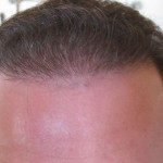 Hairline close 3.5 months post op