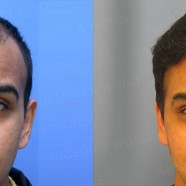 Hair Transplant Before and After Pictures 5