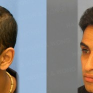 Hair Transplant Before and After Pictures 6