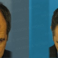 Hair Transplant Before and After Pictures 7