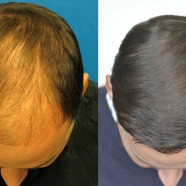 Hair Transplant Before and After Pictures 8