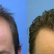 Hair Transplant Before and After Pictures 9