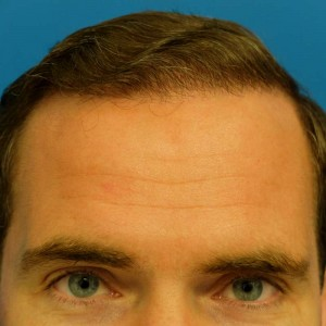 Hairline Close