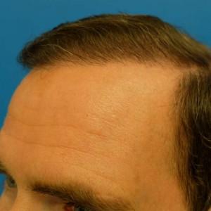 Left Hairline close