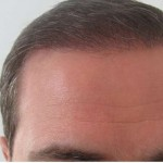 Hairline cropped-W800