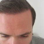 Hairline Close-W800