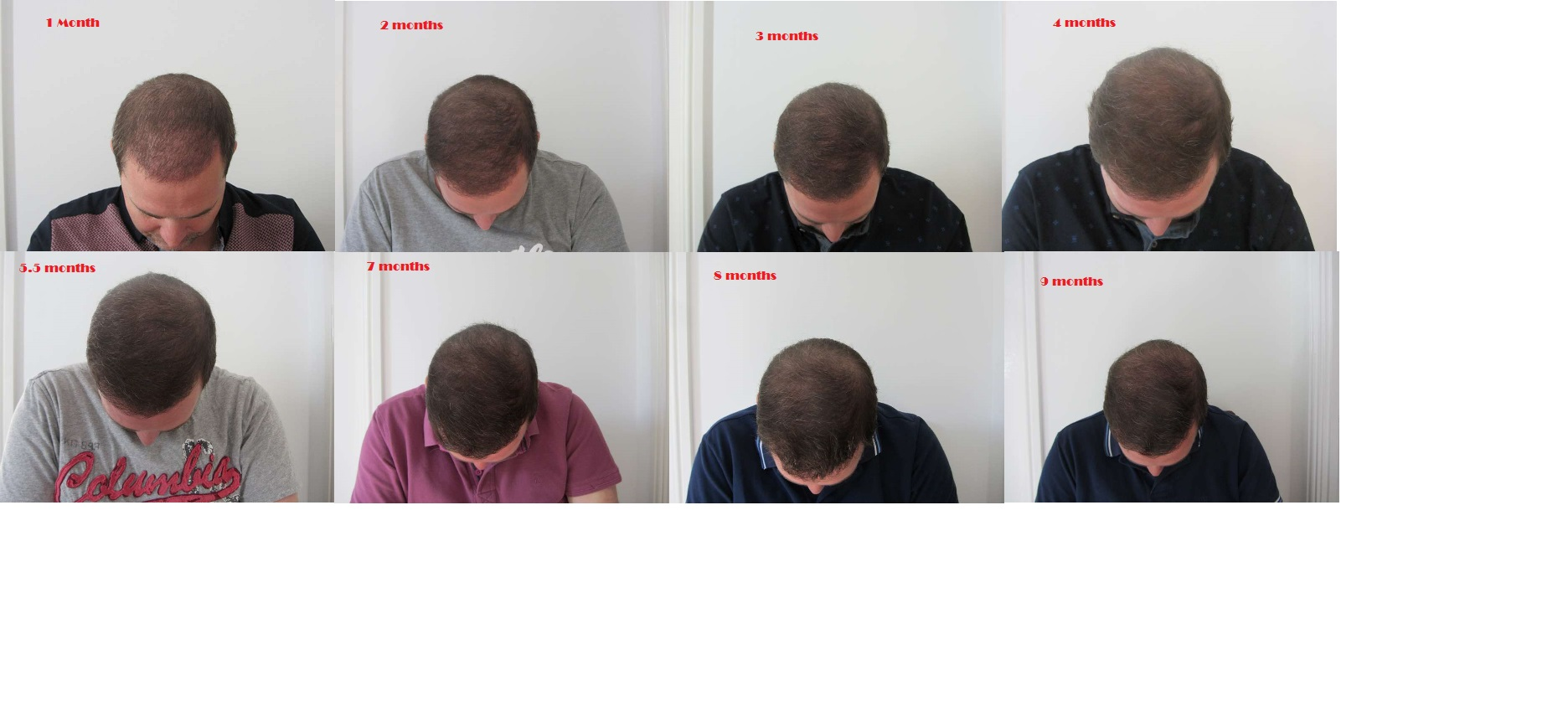My Progress month by month timeline in pictures | UK Hair ...